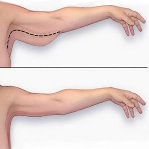 5 bài tập giảm mỡ bắp tay thon gọn, săn chắc bạn nên áp dụng tập ngay