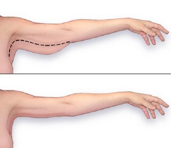 các bài tập giảm mỡ bắp tay hiệu quả 1